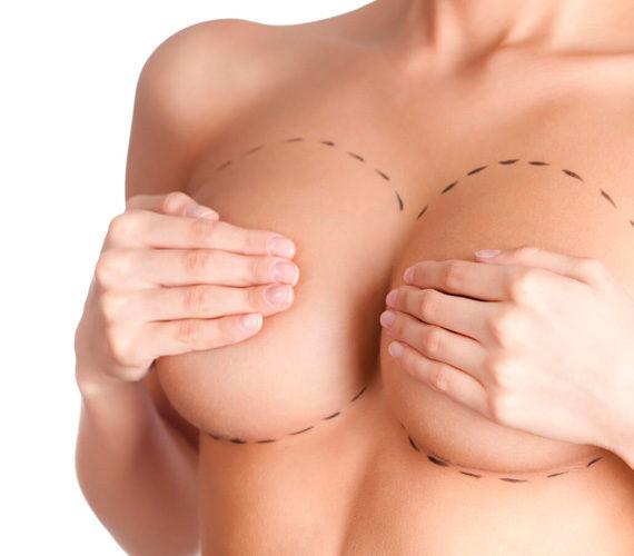 Augmentation mammaire Dr pelletier chirurgien esthetique marseille aubagne