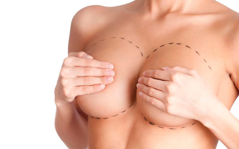augmentation-mammaire-aubagne