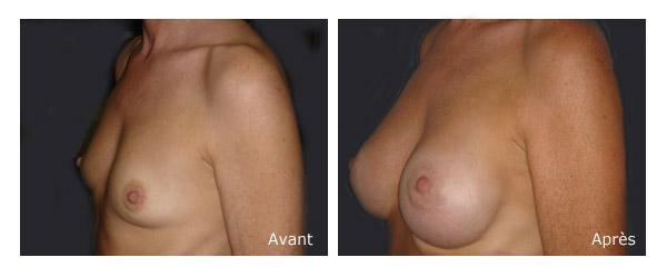 Augmentation mammaire - avant / aprés