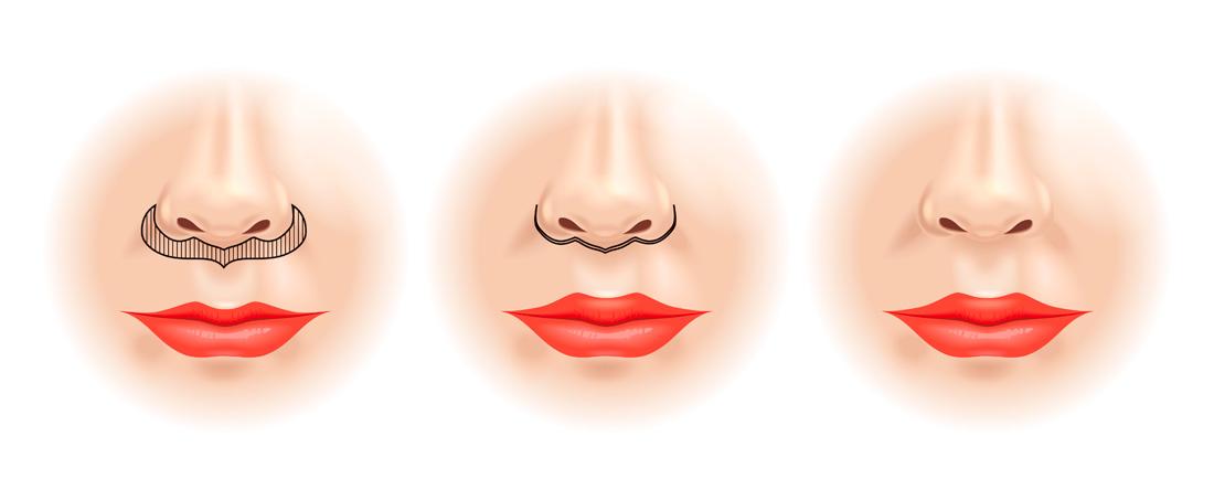 Lifting de la lèvre supérieure, marseille, Dr Pelletier