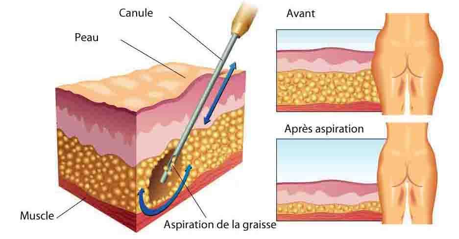 liposuccion chirurgien esthetique aubagne principe