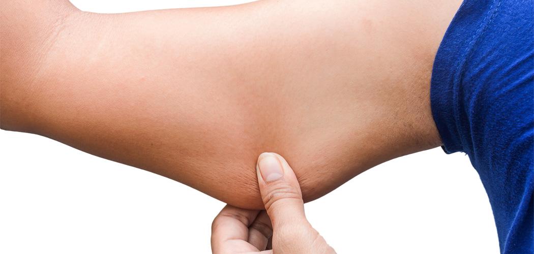 Lipectomie des membres supérieurs (face interne du bras) Dr pelletier chirurgien esthetique marseille aubagne