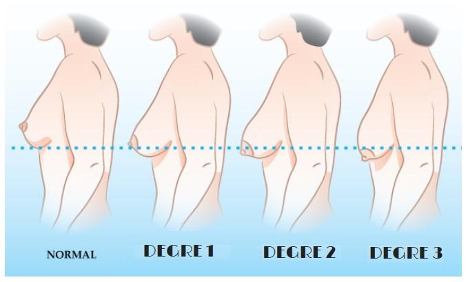 différents degrés de la ptose mammaire Dr pelletier Marseille Aubagne